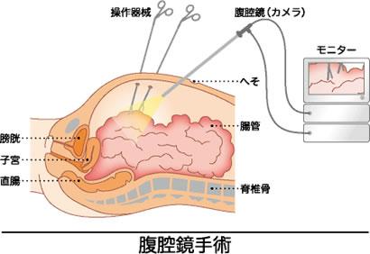 大腸がんの腹腔鏡下切除手術とは