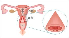子宮円錐切除術のイメージ
