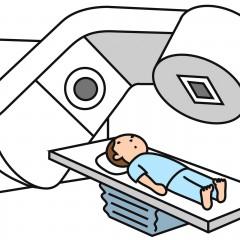 子宮頸がん放射線治療