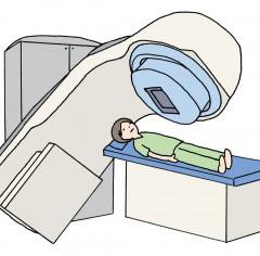 子宮がん放射線治療
