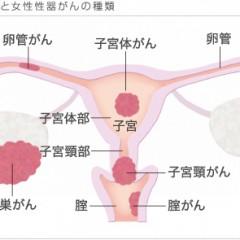 子宮がんの検査と診断