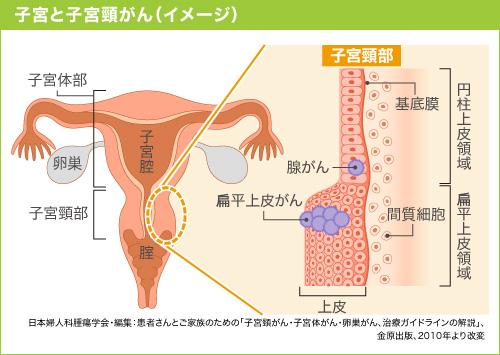 子宮頸がん「扁平上皮がん」「腺がん」
