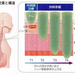 食道がんの標準治療と薬物療法(抗がん剤治療)