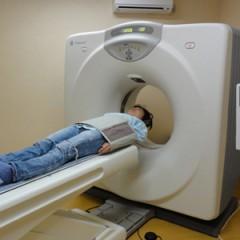 CT膵臓がん