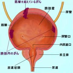 膀胱がんの標準的な治療方法