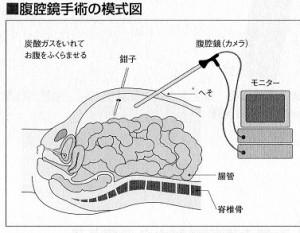 大腸癌腹腔鏡手術