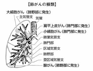 肺がんのタイプと分類方法