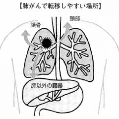 肺がんの転移