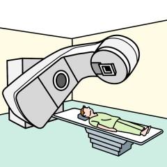 肝内胆管がんの放射線治療