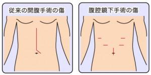 胃がんの「腹腔鏡手術」