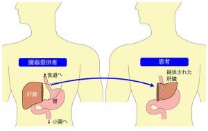 肝臓がんと肝臓移植(生体肝移植/脳死肝移植)
