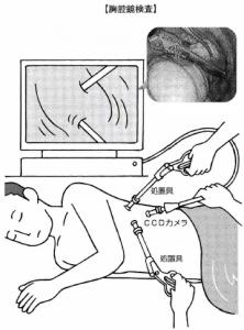 肺がん胸腔鏡検査