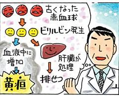 肝臓がんでなぜ黄疸が起きるのか