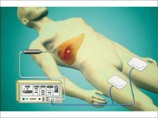 ラジオ波焼灼療法