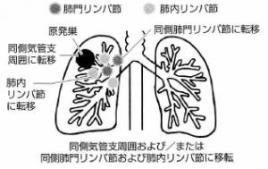 肺がんリンパ節転移