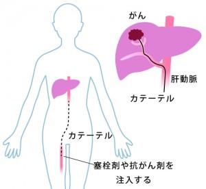 肝動脈塞栓療法の効果