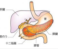 すい臓がんと糖尿病