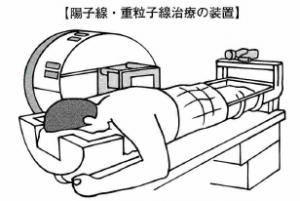 肺がん陽子線治療、重粒子線治療