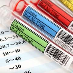 膵臓がんに関する血液検査と腫瘍マーカー