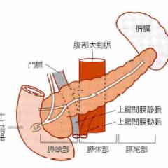 膵臓がんのステージと標準的な治療法