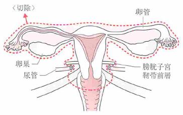 準広汎子宮全摘出術
