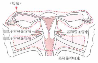 広汎子宮全摘出術