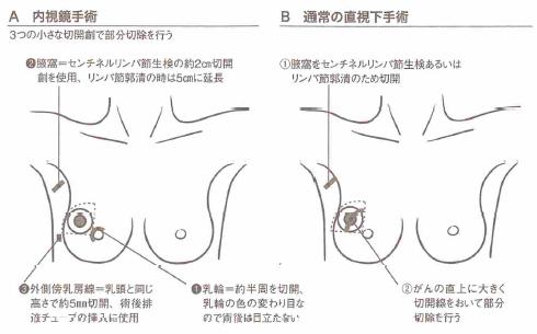 乳がんの内視鏡手術