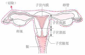 単純子宮全摘術