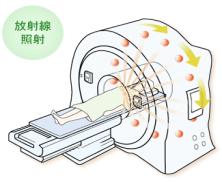 乳がんが脳や骨に転移したときの放射線