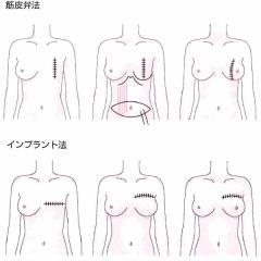 乳がん「乳房再建」にかかるお金と手術