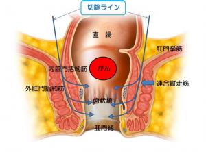 括約筋間直腸切除術(ISR)