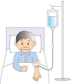 がん放射線治療「晩期障害」後遺症と副作用