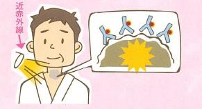 光免疫療法(近赤外線免疫療法)の治験の進捗状況