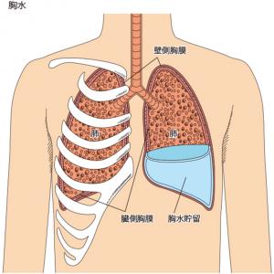 胸水の原因と胸膜癒着術などの対策